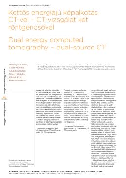 Kettős energiájú képalkotás CT-vel – CT-vizsgálat
