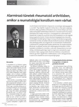 Alarmírozó tünetek rheumatoid arthritisben, amikor a reumatológiai