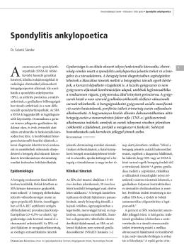 Spondylitis ankylopoetica