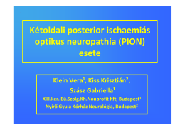 Kétoldali posterior ischaemiás optikus neuropathia esete
