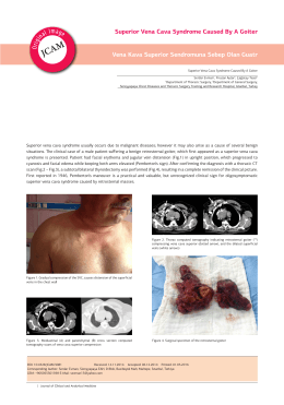Superior Vena Cava Syndrome Caused By A Goiter Vena Kava