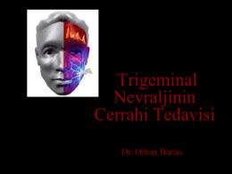 Trigeminal Nevralji