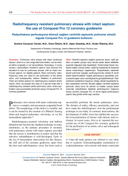 the use of Conquest Pro 12 coronary guidewire