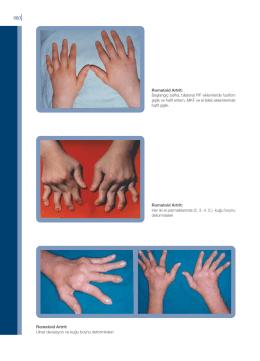 Romatoid Artrit: Başlangıç safha, bilateral PIF eklemlerde fusifom