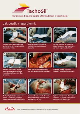 Jak použít v laparotomii