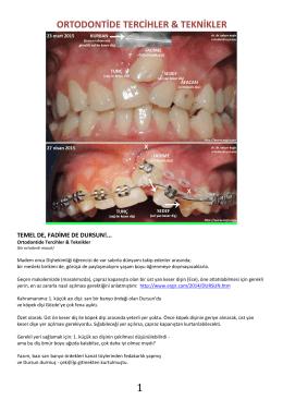 Ortodontide Tercihler & Teknikler