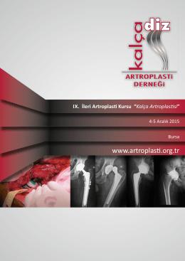 Kalça Artroplas si - artroplasti derneği