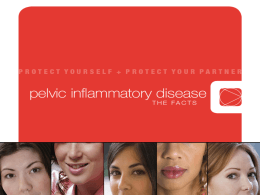 Pelvik Inflamatuar Hastalık