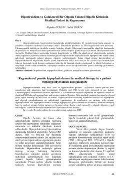 Hipotiroidizm ve Galaktoreli Bir Olguda Yalanci Hipofiz Kitlesinin