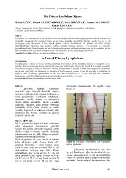 Bir Primer Lenfödem Olgusu - Düzce Üniversitesi Tıp Fakültesi Dergisi