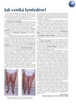 Jak vzniká lymfedém? - Lymfoterapie