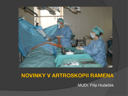 Novinky v artroskopii ramena