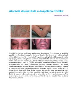 Atopická dermatitida u dospělého člověka